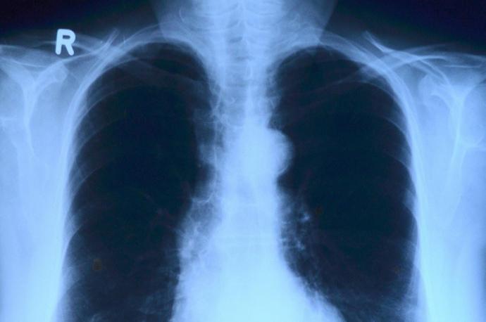 肺炎 背中 痛い
